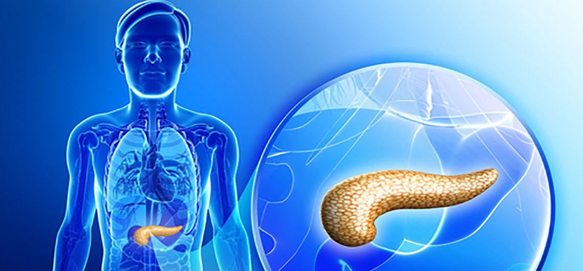 Infos zur Erkrankung - Selbsthilfe-Pankreaskarzinom